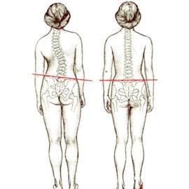 Укорочение ноги